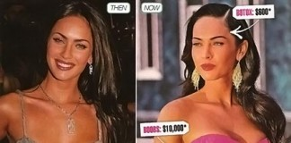 megan-fox-before-after-surgery breast