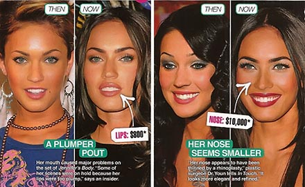 megan-fox-plastic-surgery pictures